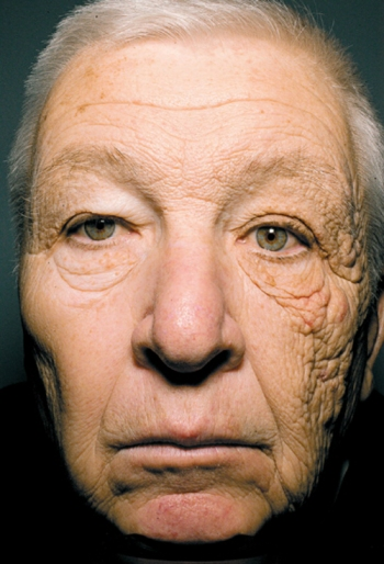 Sunscreen Should be Worn While Driving